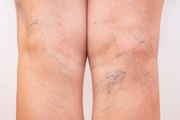 Best Ways to Treat Varicose Veins
