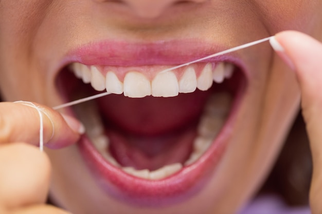 Female patient flossing her teeth Free Photo