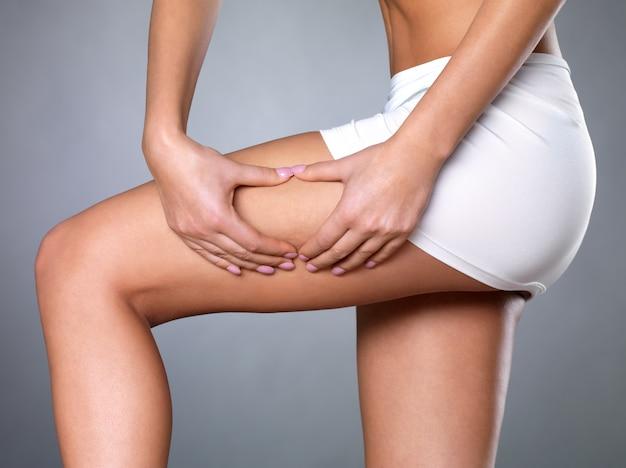 Женщина сжимает целлюлитную кожу на ногах - снимок крупным планом на белом пространстве Бесплатные Фотографии