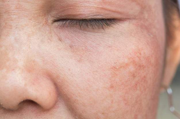 Freckles face and skin problem Premium Photo