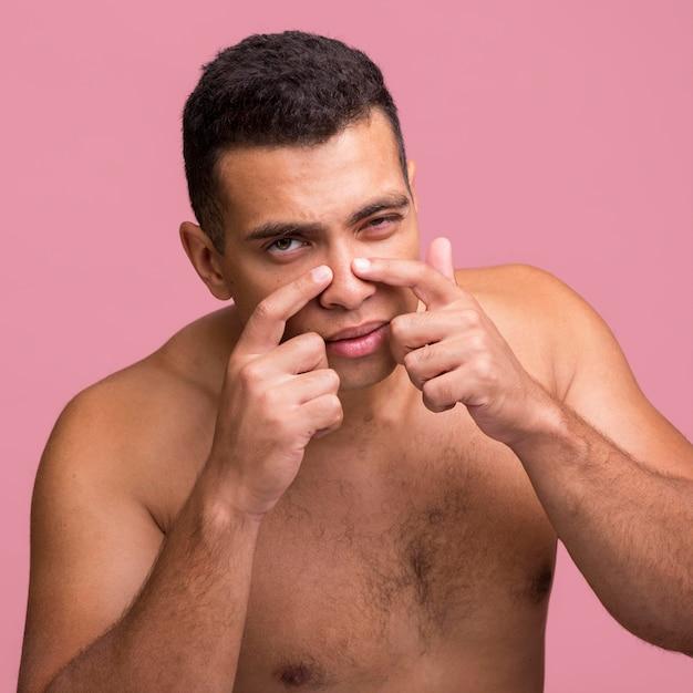Vista frontale dell'uomo che cerca di far scoppiare il brufolo sul naso Foto Gratuite