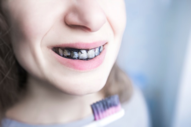 The girl brushes her teeth with black paste charcoal Premium Photo