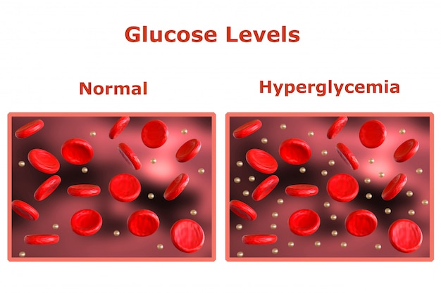 Glucose levels in the blood, table with normal levels and another table indicating diabetes. 3d rendering Premium Photo