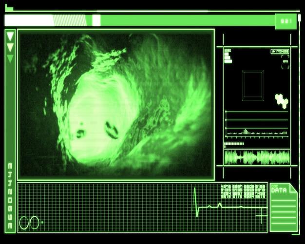 Зеленый и черный интерфейс, показывающий внутреннюю часть вены Premium Фотографии