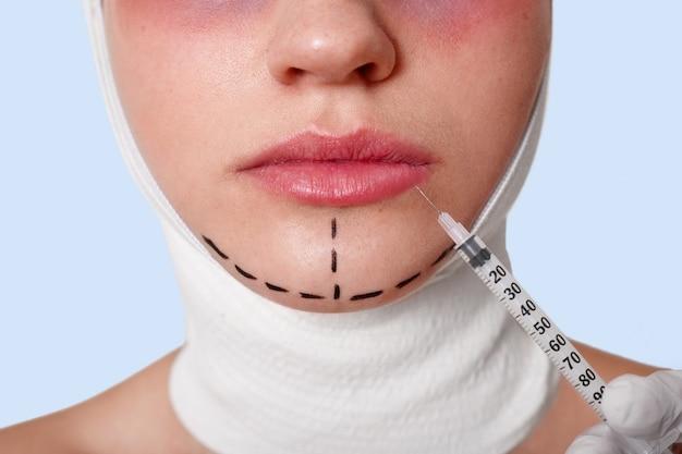 Metà del viso della bellissima giovane donna caucasica con linee di perforazione sul mento prima dell'intervento di chirurgia plastica Foto Gratuite