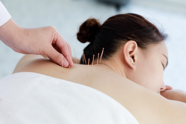 acupuncture - traditional chinese medicines technique