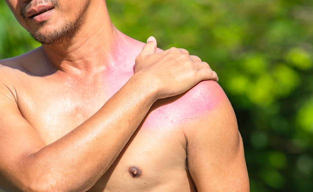 The hand grips the shoulder that inflammation from a sports injury. Premium Photo