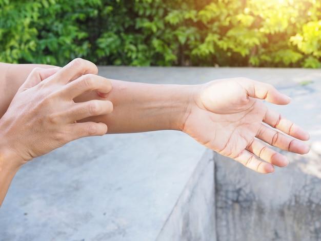 Расчесывание руки от зуда при кожных заболеваниях проблемы с сухой кожей, дерматит или экзема. Premium Фотографии