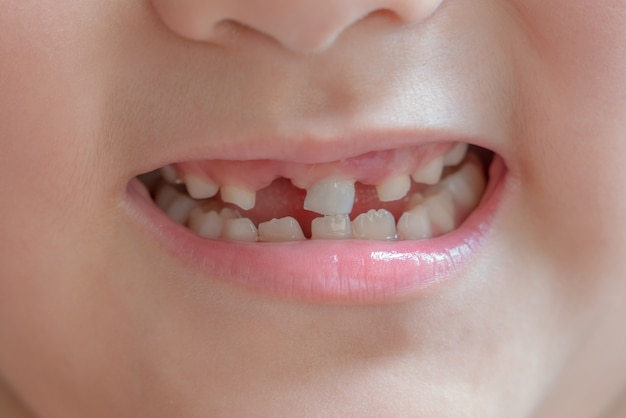 A happy little boy smile and showing his broken teeth. Premium Photo