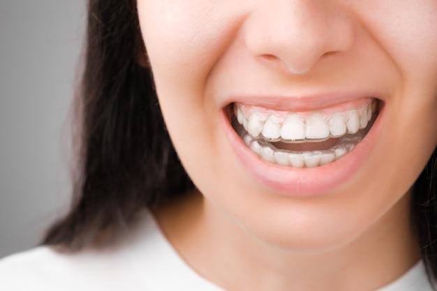 그녀의 치아에 투명 정렬기에 완벽한 미소로 행복한 여자 프리미엄 사진
