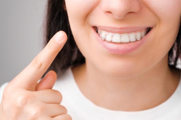 완벽한 미소를 가진 행복한 여자는 그녀의 이빨에 투명 정렬 장치에 손가락으로 보여줍니다 프리미엄 사진