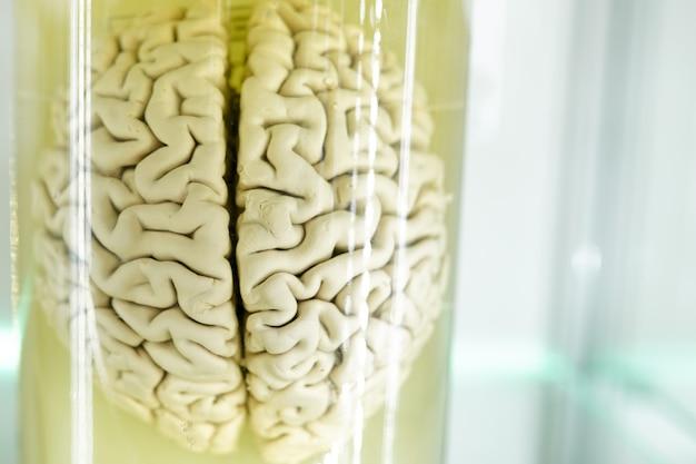 Human organ brain anatomy. part of the human body in formalin. medical science technology Premium Photo