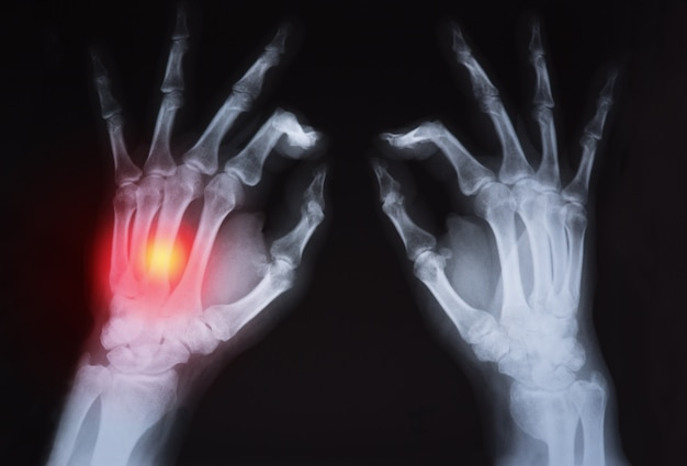 Human's hand's x ray highlighted in red Premium Photo