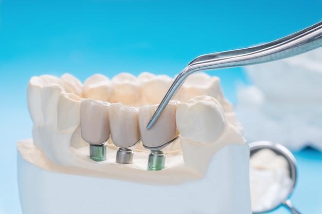 Implanモデルの歯のサポートを修正し、ブリッジインプランとクラウンを修正します。 Premium写真