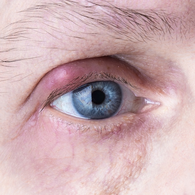 Infected purulent eye. close up eye infection Premium Photo