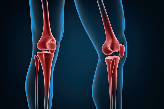 Injured knees close-up Premium Photo