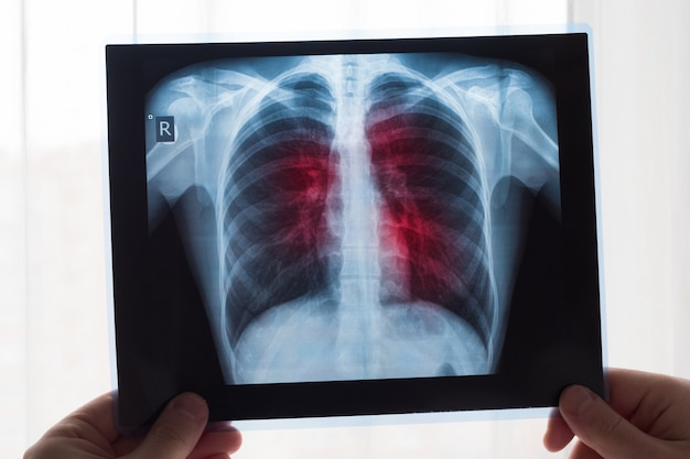 Lung radiography concept. radiology doctor examining at chest x ray film of patient lung cancer or pneumonia. Premium Photo