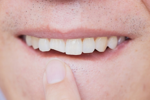 Male broken teeth damaged cracked front tooth need dentist