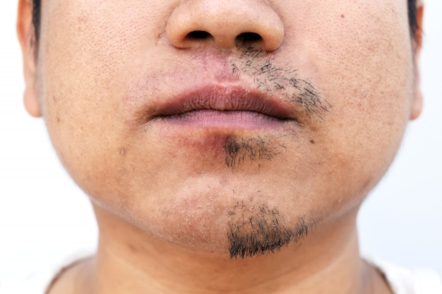 Man pulled mustache by tweezers on white background Premium Photo