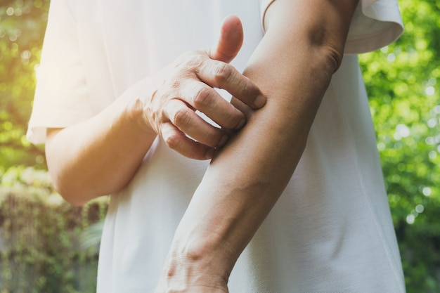 Man scratch itch with hand. man scratching his arm healthcare concept. Premium Photo
