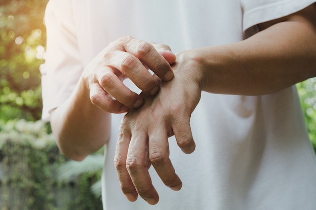 Man scratch itch with hand. man scratching his hand healthcare concept. Premium Photo