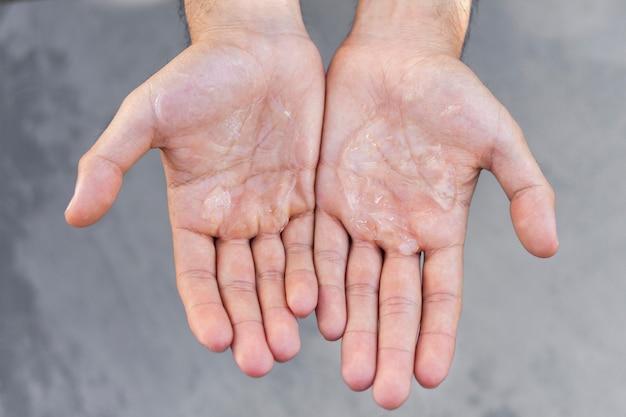 Человек, использующий водно-спиртовой гель Бесплатные Фотографии