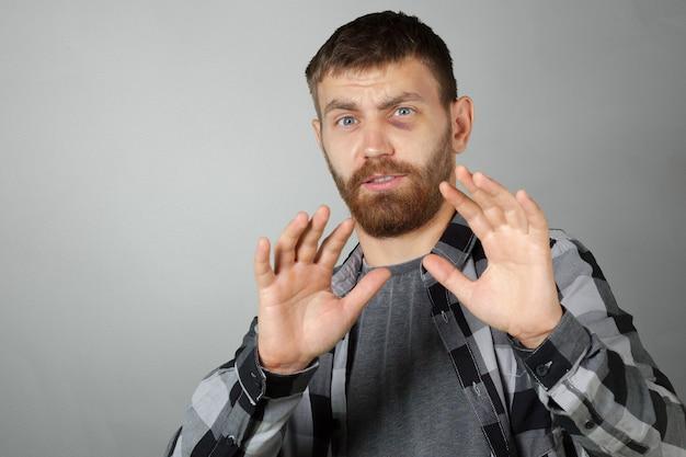 Man with real eye bruise Premium Photo