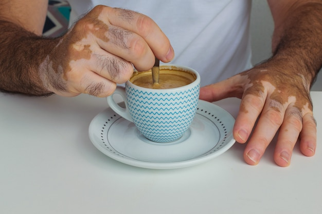 Man with vitiligo holding a cup of coffee Premium Photo