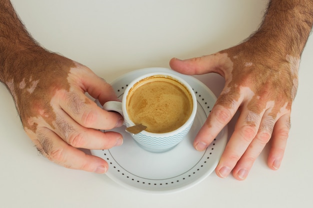 Man with vitiligo holding a cup of coffee Premium Photo