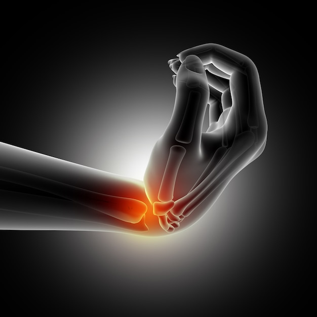 Medical background showing wrist in bent position Free Photo