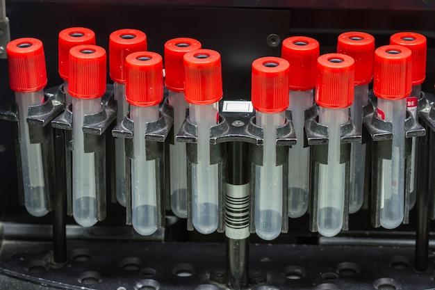 Medical blood separation test centrifuge in chemical laboratory,    medicine equipment Premium Photo