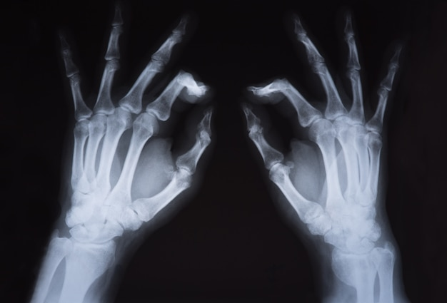 Medical x ray hands image Premium Photo