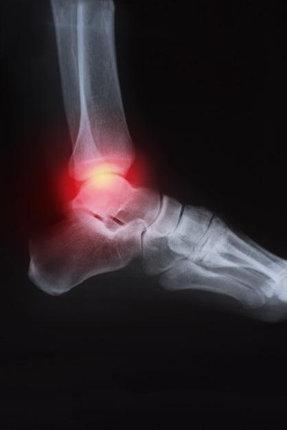 Medical x-ray knee joint image with arthritis ( gout , rheumatoid arthritis , septic arthr Premium Photo