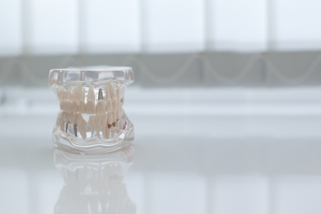 Model of artificial jaw on the table in the dental office Premium Photo