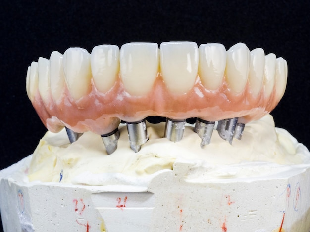 Monolithic zirconia restorations full arch implant supported with the ceramic load Premium Photo