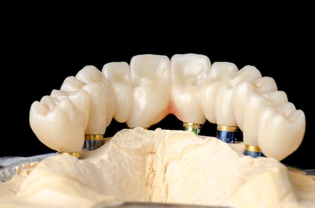 Monolithic zirconia restorations full arch implant Premium Photo
