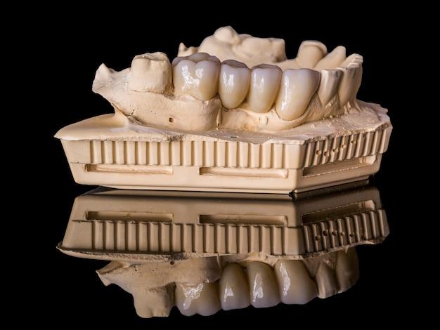 Monolithic zirconia restorations  implant supported with the ceramic load in vestibular Premium Photo