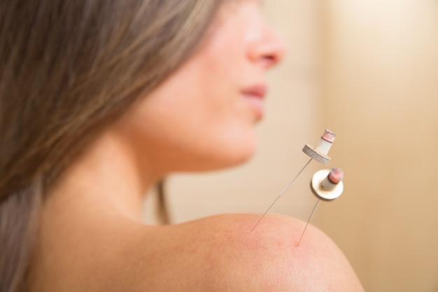 Moxibustion acupunture needles heat on woman Premium Photo