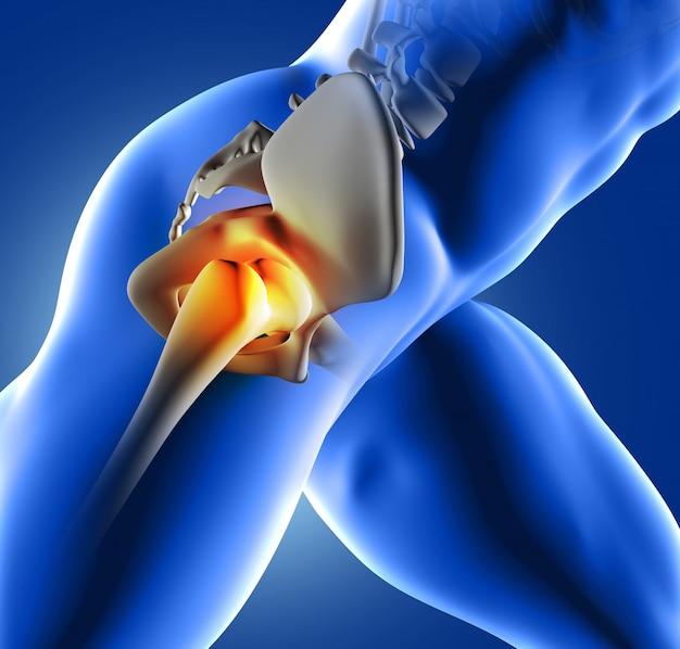 股関節の痛み 無料写真