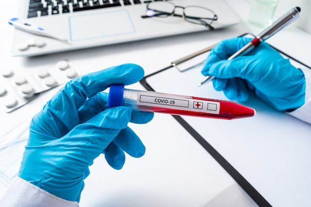 Nurse holding a positive blood test result for the new rapidly spreading coronavirus Premium Photo