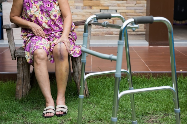 Old woman with leg surgery rest at field Premium Photo