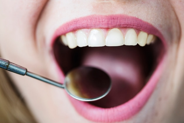Open mouth of woman with dentist mirror Free Photo