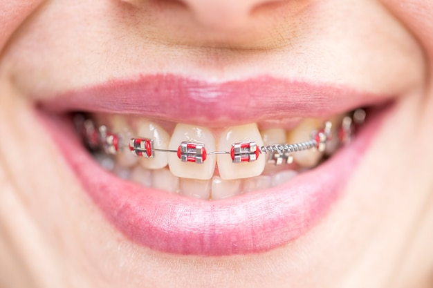 Ортодонтические брекеты. концепция стоматолога и ортодонта. Premium Фотографии