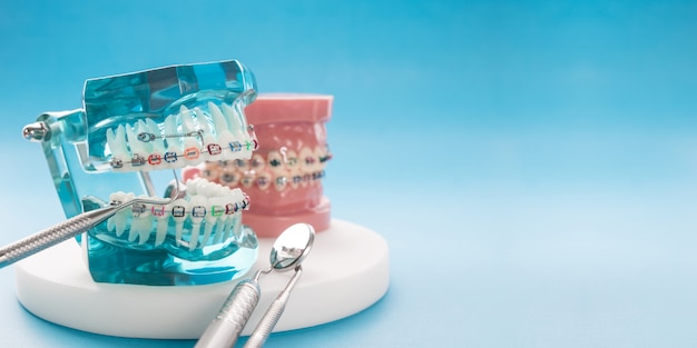 Orthodontic model and dentist tool - demonstration teeth model of varities of orthodontic bracket or brace Premium Photo