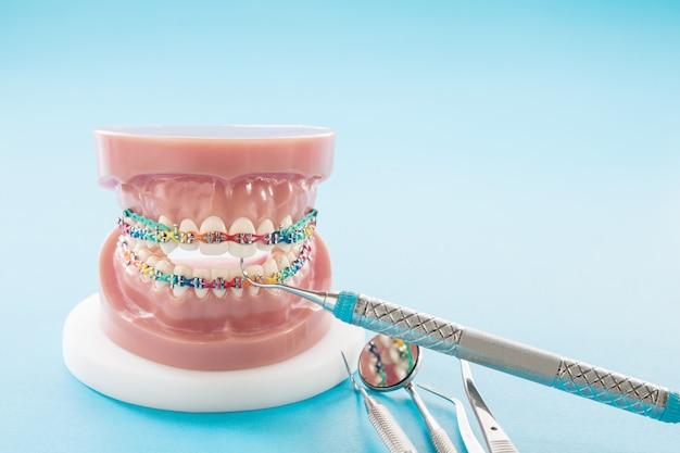 Orthodontic model and dentist tool - demonstration teeth model of varities of orthodontic bracket or brace Premium Photo