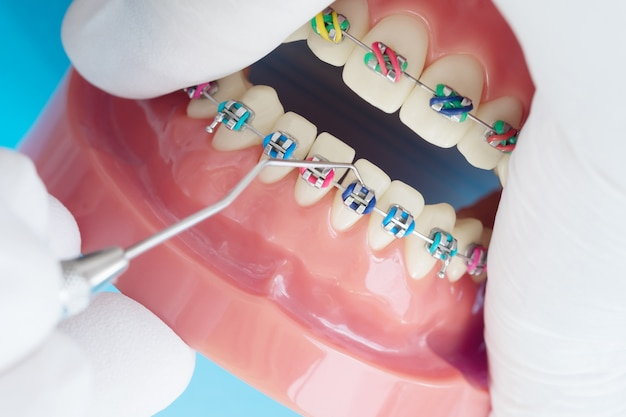 Orthodontic model and dentist tool - demonstration teeth model of varities of orthodontic Premium Photo