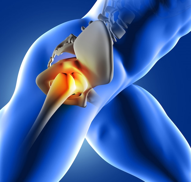 Pain In The Hip Joint Photo Free Download
