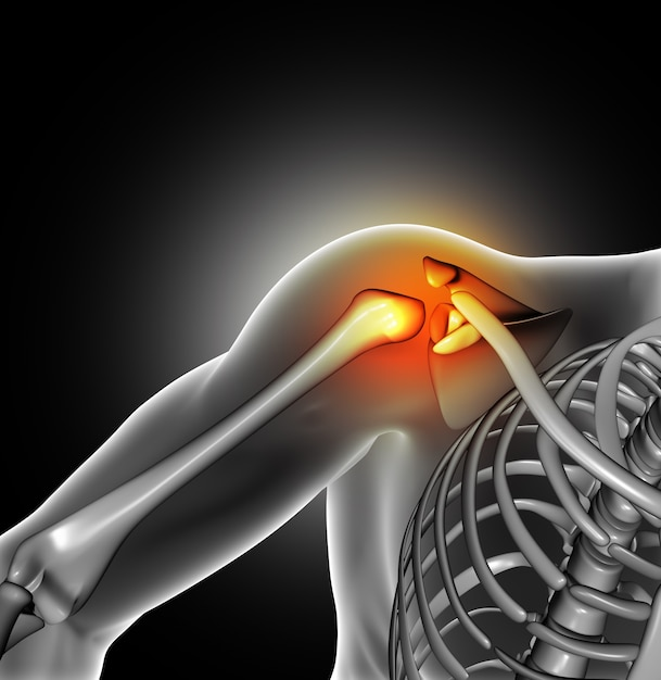Pain in the shoulder joint Free Photo