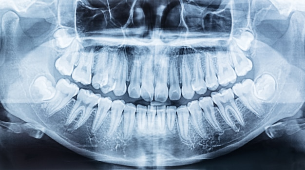 Panoramic dental x-ray of a mouth left and right side. Premium Photo