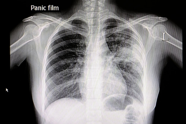 Pneumonia chest film Premium Photo
